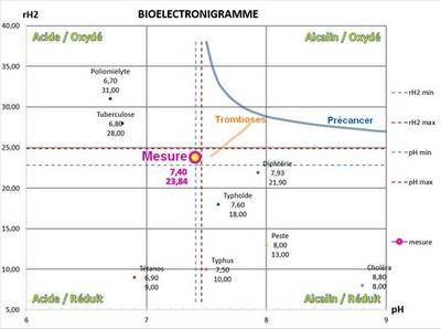 energescence bioélectronigramme