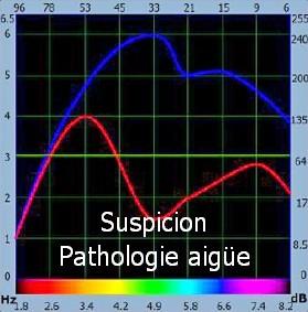 bioresonance suspicion aiigue