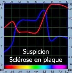 bioresonance suspicion sclerose